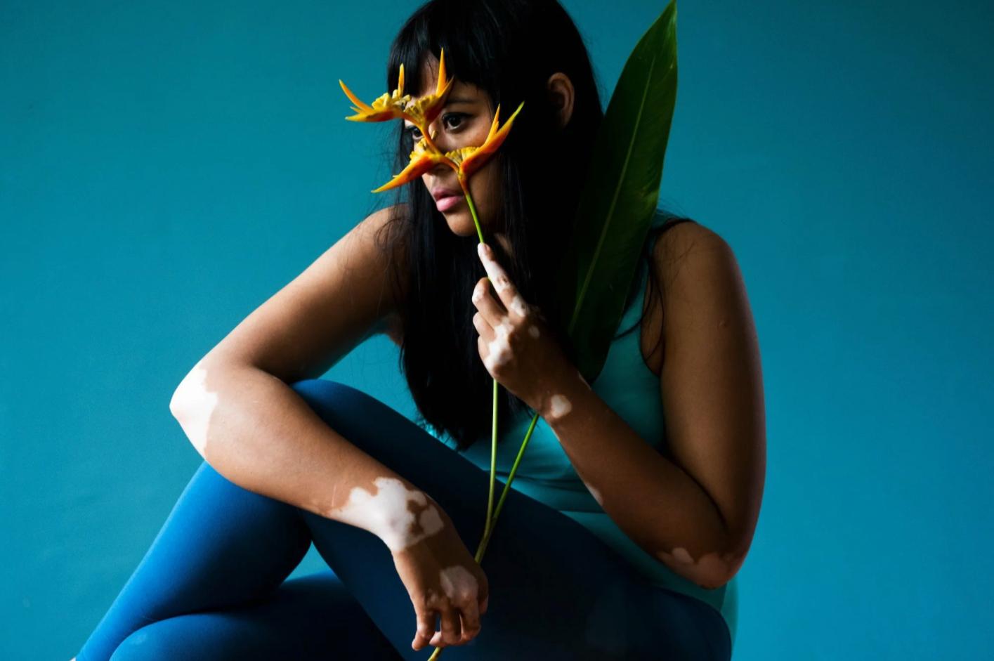 A self-portrait for the Vitiligo series (Photo: Nadirah Zakariya)
